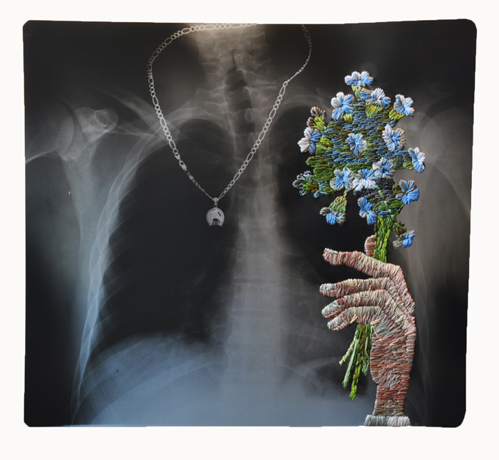 Embroidered X-rays by Matthew Cox.